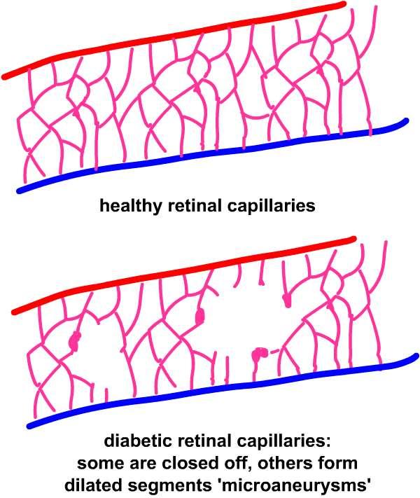 capillaryclosure eyes